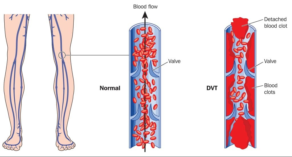 Graphic showing what deep vein thrombosis is