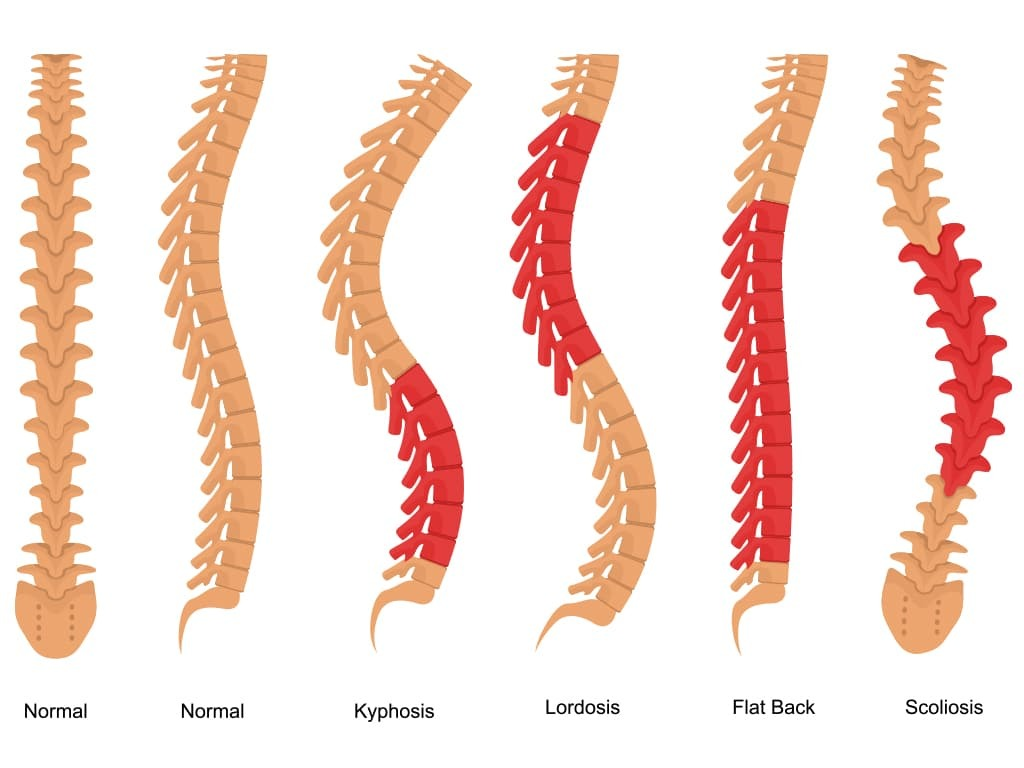 Spinal curvature abnormalities