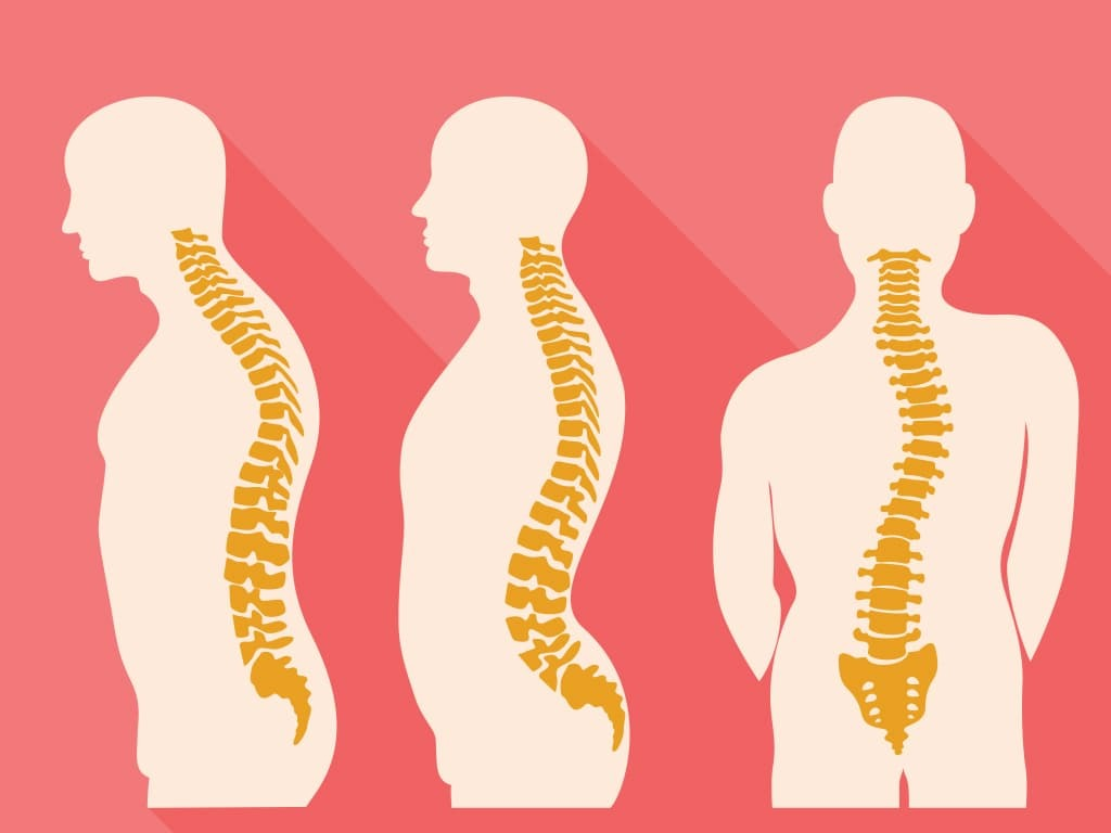Spine curvature disorders
