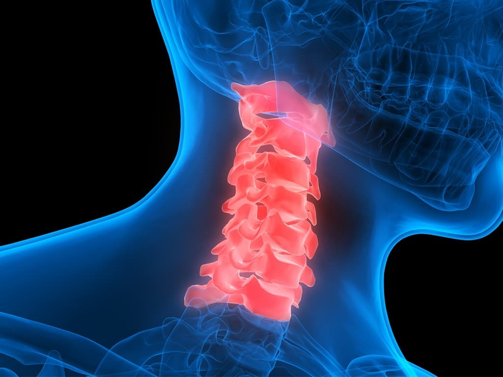 Cervical spinal cord injuries